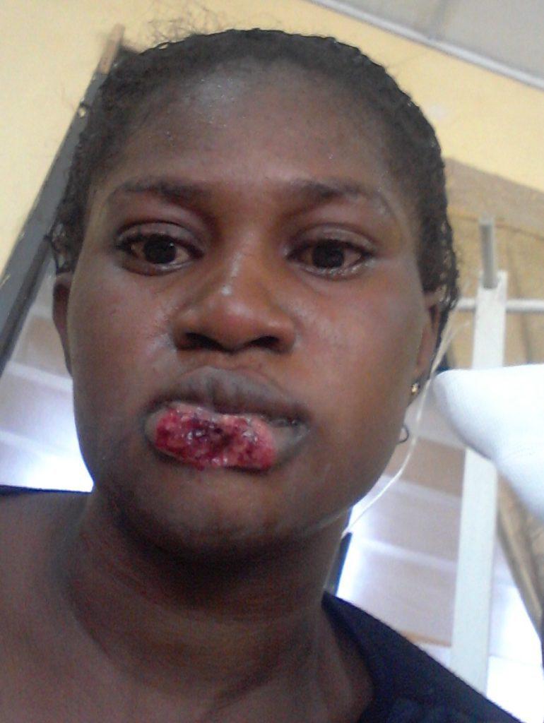 rival bit off woman's lip